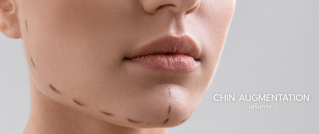Chin augmentation in Bangkok and Chiang Mai, Thailand